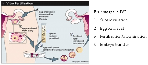 an overview of the artificial insemination and test tube fertilization Learn about the different insemination methods, including iui, intravaginal insemination, intracervical insemination, and intratubal insemination.